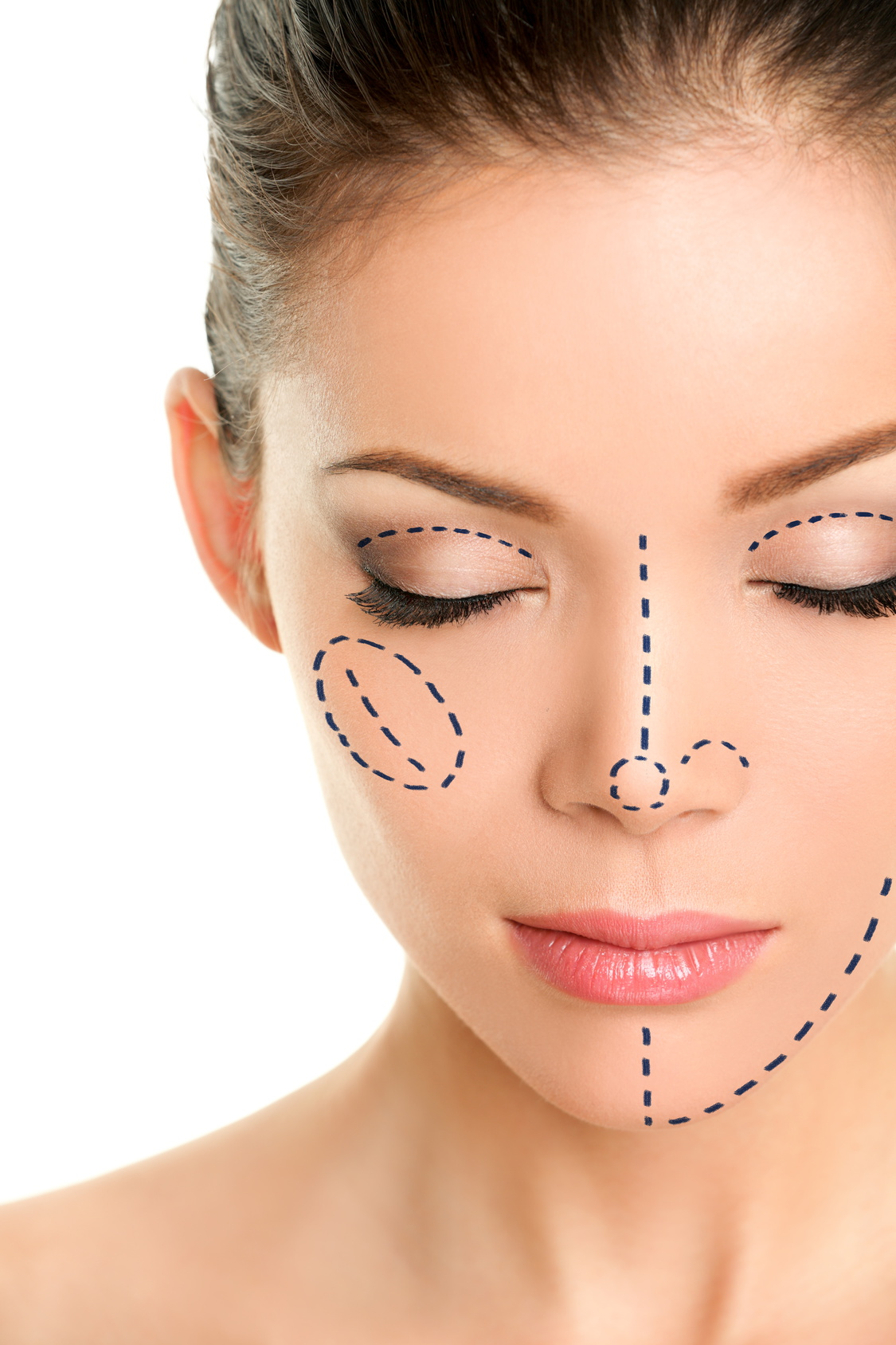 rhinoplasty glasgow